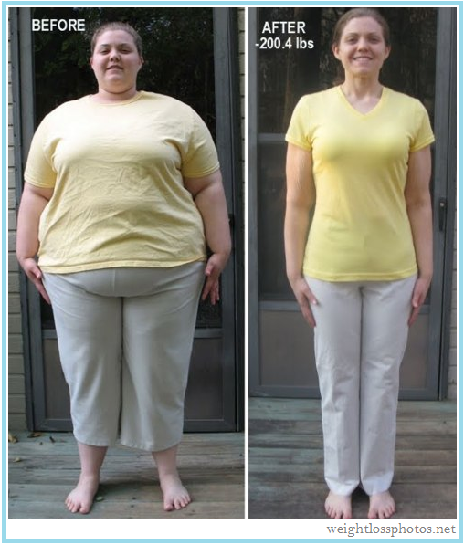 The young lady above lost mucho weight, and as a result her waist ...
