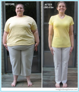 304-extreme-weight-loss-before-after-women
